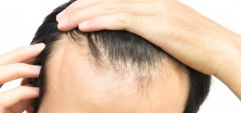 What causes sudden hair loss? Can it be reversed?