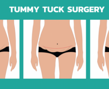 Abdominoplasty, What To Expect