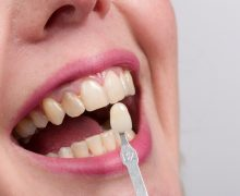 Do Dental Implants Stain Or Discolor?