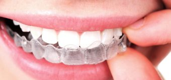 How Old Should A Patient Be For Invisalign?