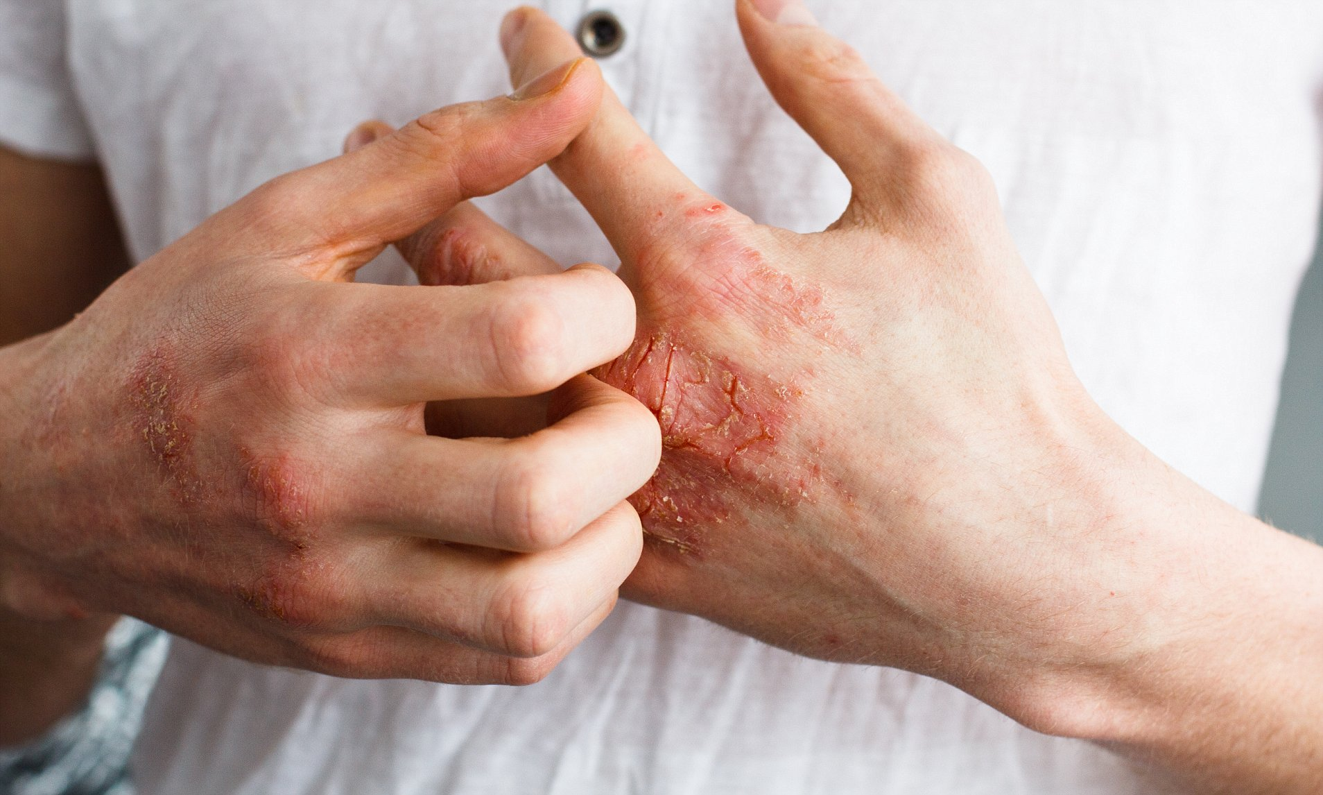 Everything You Need To Know About Itchy Skin Alcohol Withdrawal