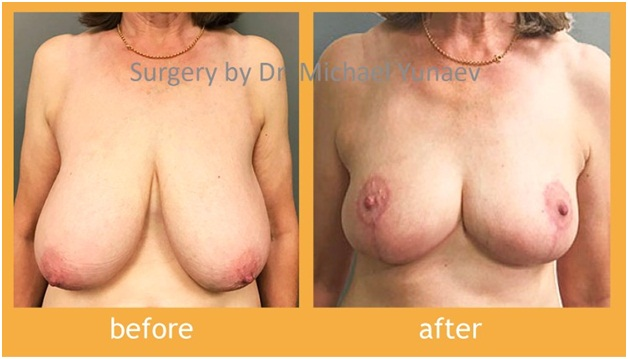 Dealing With Large Breasts And Breast Asymmetry