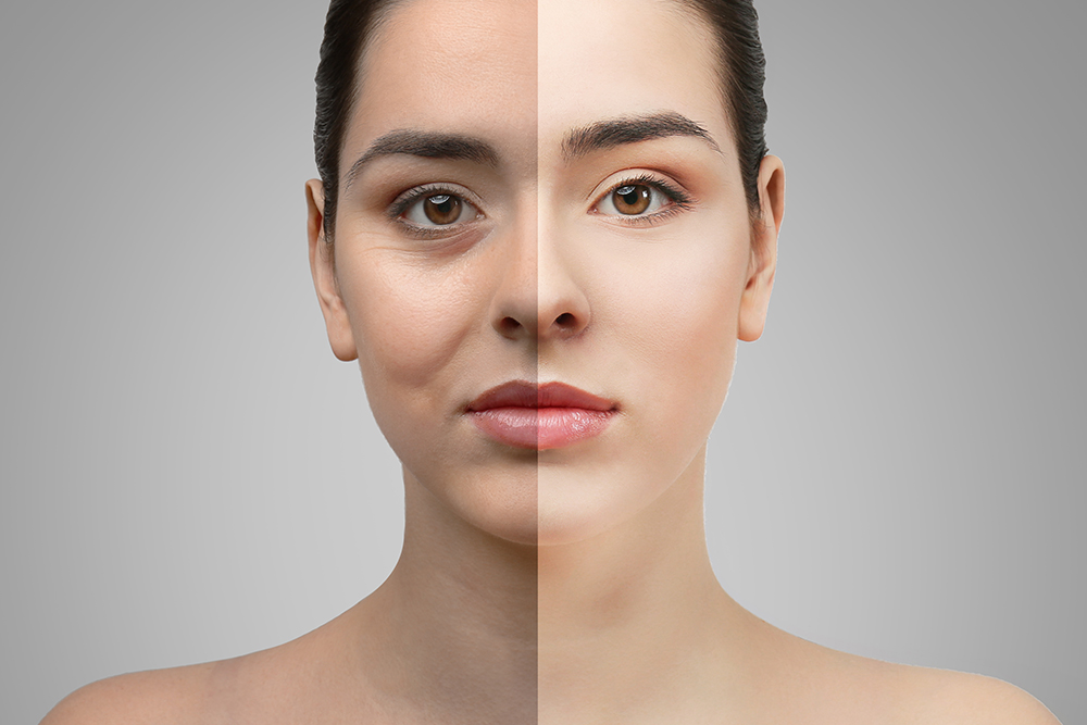 Eyelid Surgery Has A Bigger Impact Than You Think